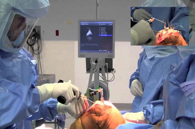 Phẫu thuật điều trị bệnh viêm khớp gối