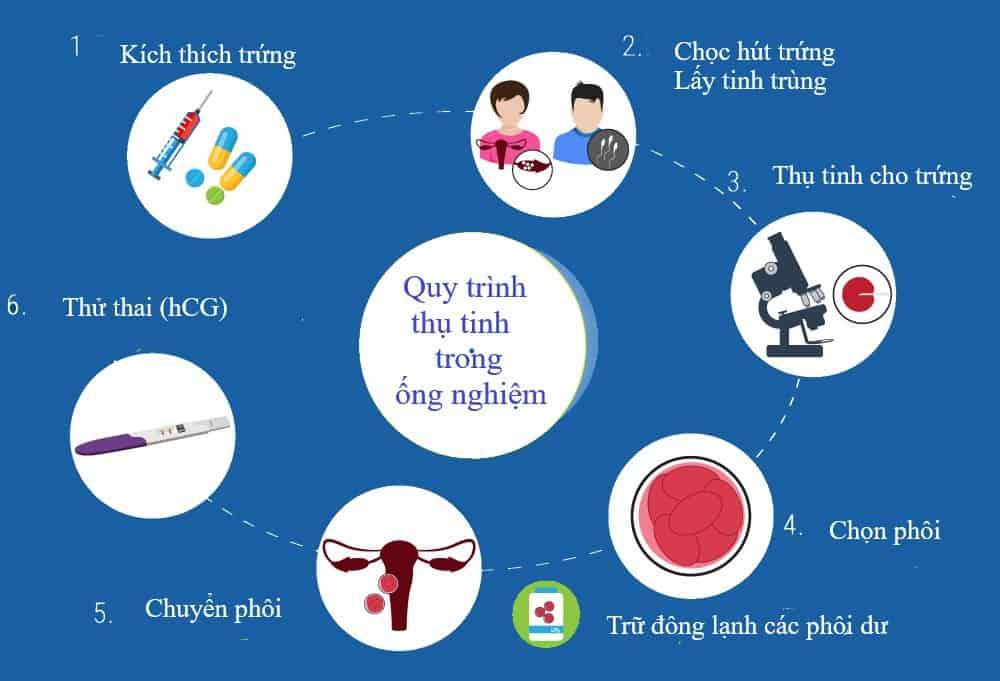 Quy trinh thụ tinh trong ống nghiệm IVF