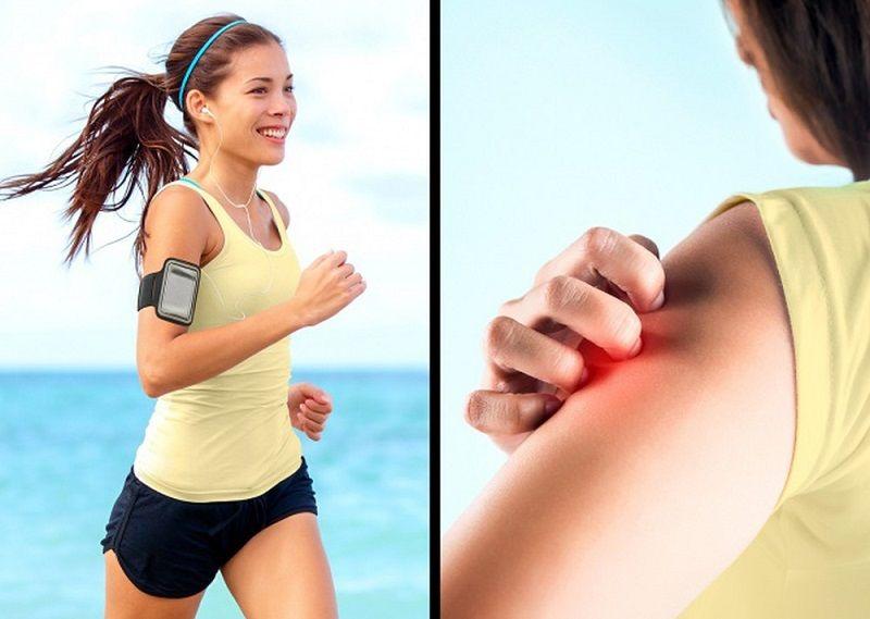 Tập thể dục sau khi ăn thực phẩm dễ kích ứng là nguyên nhân nổi mề đay