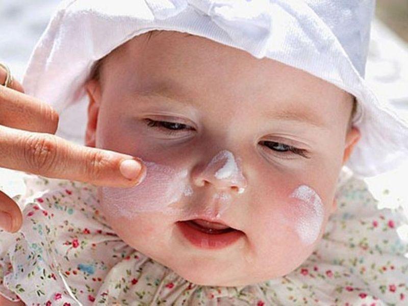 Thoa các loại kem trị rôm sảy giúp làm giảm triệu chứng của bệnh