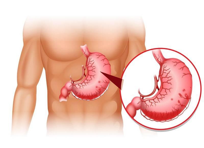 Tình trạng lở loét hoặc xuất huyết dạ dày có thể gây ảnh hưởng đến thuốc Dalteparin