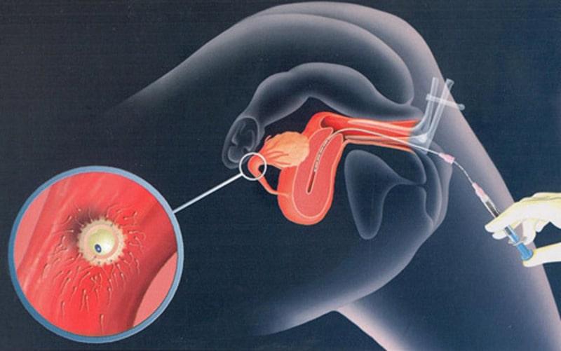 Tinh trùng được bơm vào buồng tử cung nhờ ống dẫn