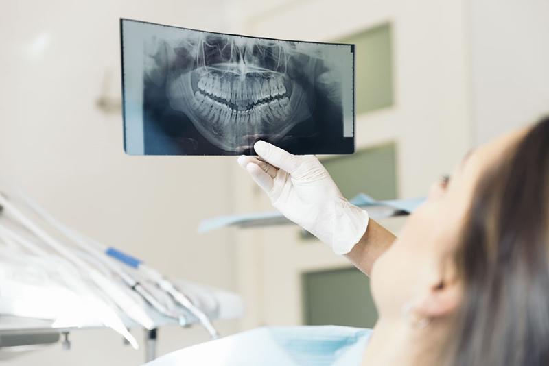 Theo ước tính, mỗi lần chụp X-quang phần răng, thai nhi sẽ hấp thụ 0,0001 rad