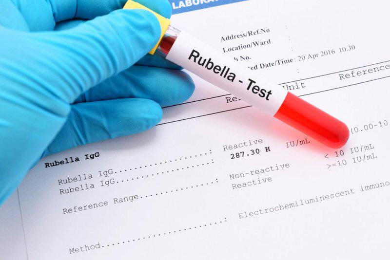 Việc xét nghiệm rubella là vô cùng quan trọng