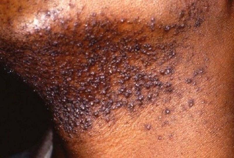 Viêm nang lông ở cổ do dao cạo