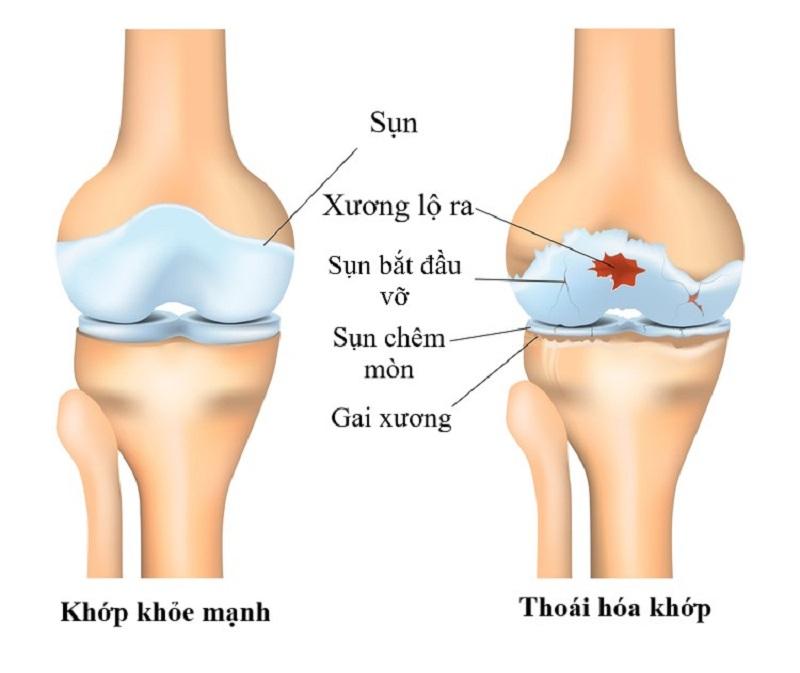 Bệnh gai xương khớp gối là gì?