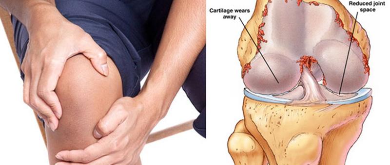 Bệnh gai xương bánh chè là gì?
