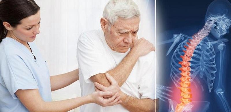 Chẩn đoán bệnh gai cột sống lưng