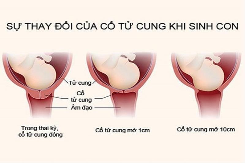 Cổ tử cung co giãn là dấu hiệu sắp sinh
