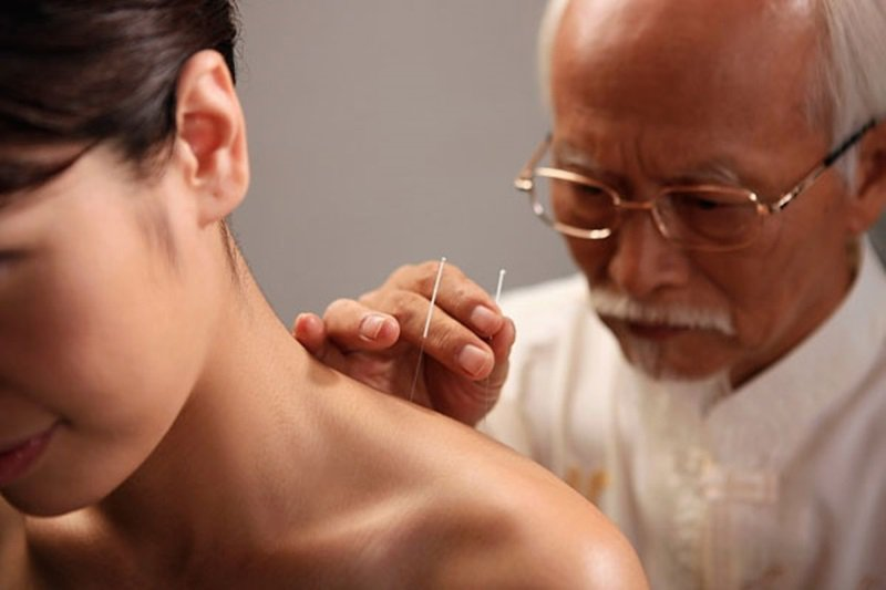Điều trị bảo tồn bằng phương pháp châm cứu