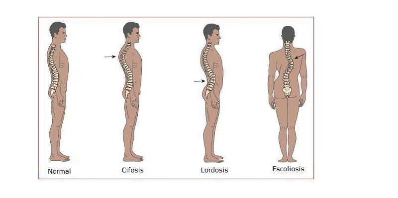 Gai đôi cột sống l5 gây mất đường cong sinh lý