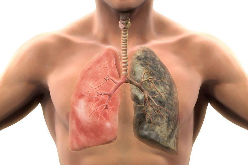 Galantamine có thể làm nghiêm trọng hơn các triệu chứng bệnh lý về phổi của bạn