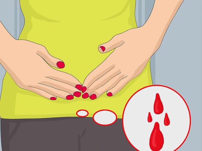 Mang thai ngoài tử cung có kinh nguyệt không là thắc mắc của nhiều chị em