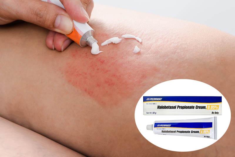 Thuốc Halobetasol điều trị các bệnh lý da liễu