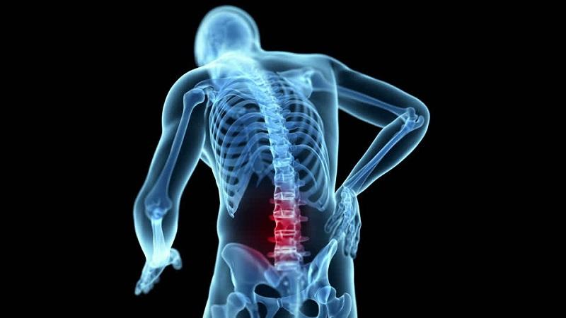 Tìm hiểu về nguyên nhân gai cột sống lưng