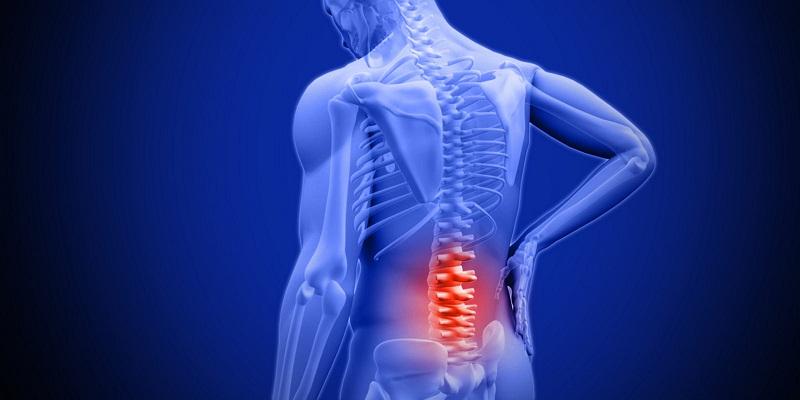Tìm hiểu về thuốc chữa gai cột sống