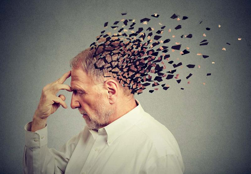 Bệnh nhân bị Alzheimer dùng 90-120mg Idebenone chia 3 lần mỗi ngày