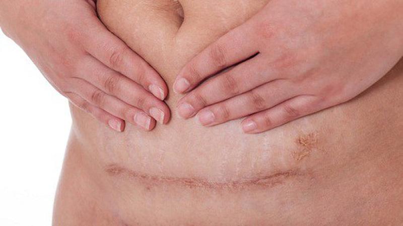 Chăm sóc vết mổ sau sinh rất quan trọng