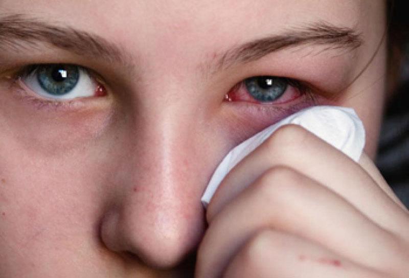 Dùng thuốc Oflovid không đúng cách có thể khiến tình trạng nhiễm trùng mắt trở nên nghiêm trọng hơn