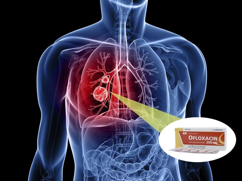 Liều dùng thuốc Ofloxacin cho người lớn bị viêm phổi