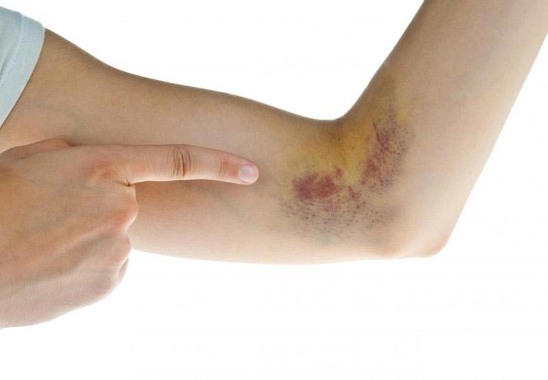 Nadolol + Bendroflumethiazide có thể làm xuất hiện nhiều vết bầm tím bất thường trên da
