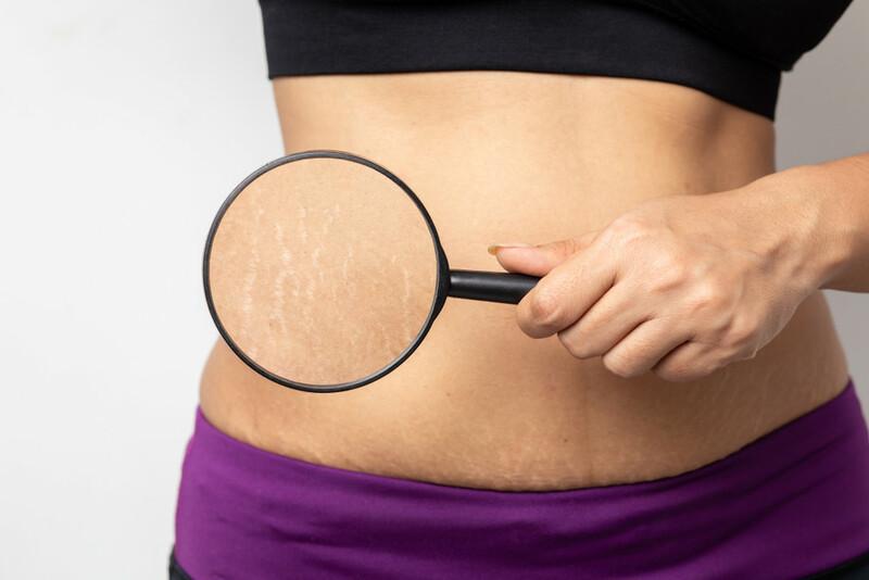 Rạn da sau sinh là vấn đề nhiều phục nữ gặp phảiRạn da sau sinh là vấn đề nhiều phục nữ gặp phải
