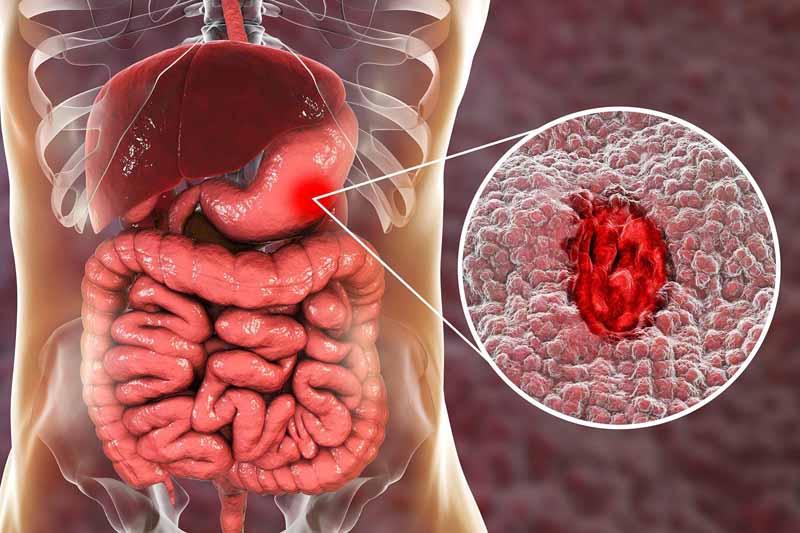 Tình trạng loét dạ dày có thể gây ảnh hưởng đến công dụng của thuốc Nadroparin canxi
