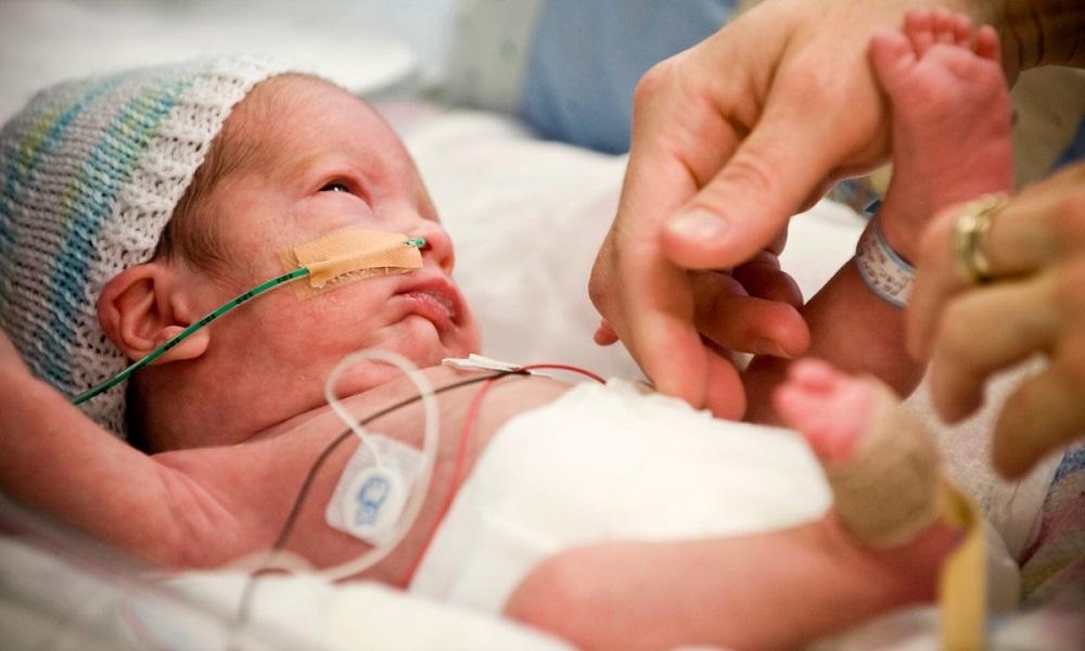 Trẻ sinh non có thể gặp các vấn đề về mắt