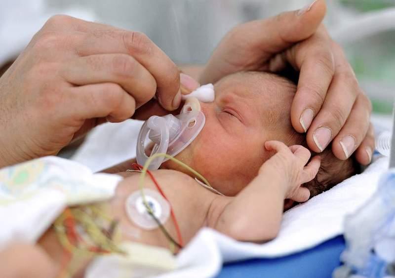Tỷ lệ sống của bé tùy thuộc vào nhiều yếu tố