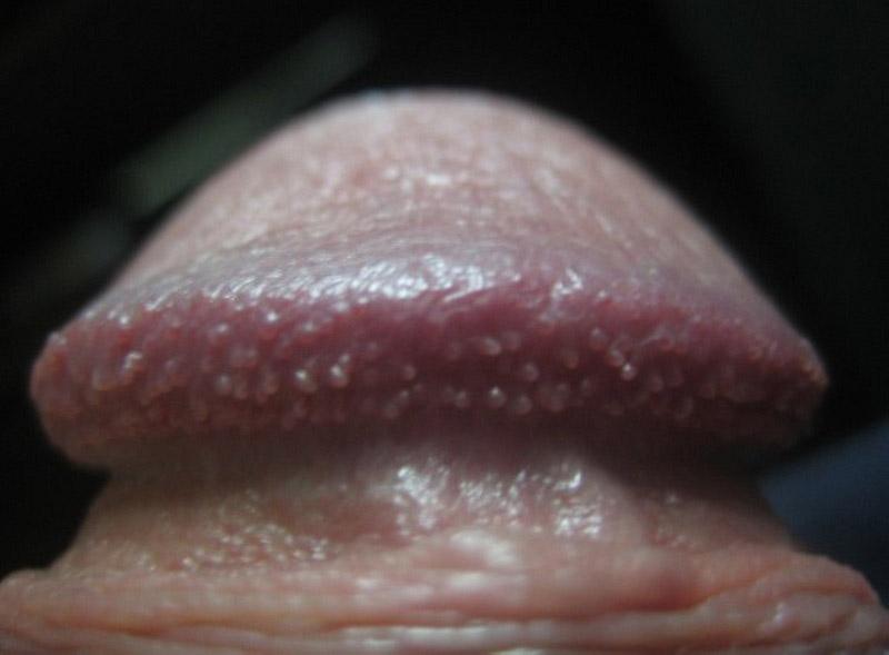 Hình ảnh chuỗi hạt ngọc dương vật ở nam giới