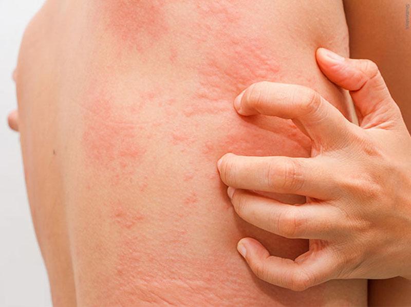 Bệnh mề đay Cholinergic có nguy hiểm không?