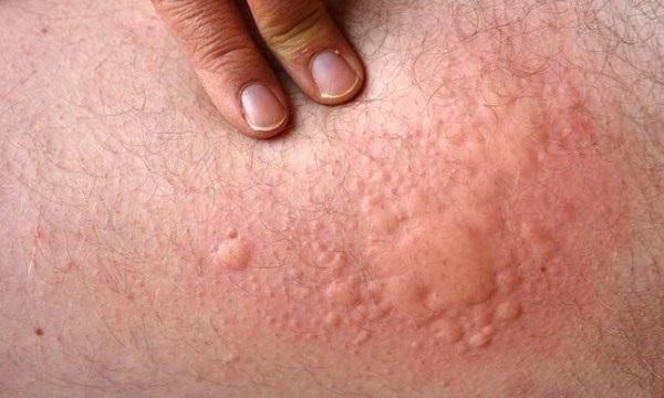 Bệnh mề đay Cholinergic là tình trạng nổi cục sần trên da