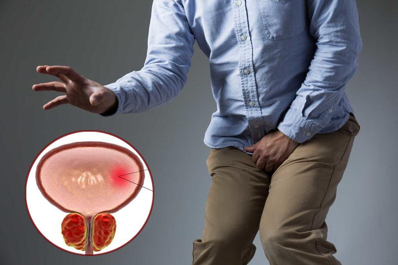 Bệnh viêm bàng quang do đâu mà có?