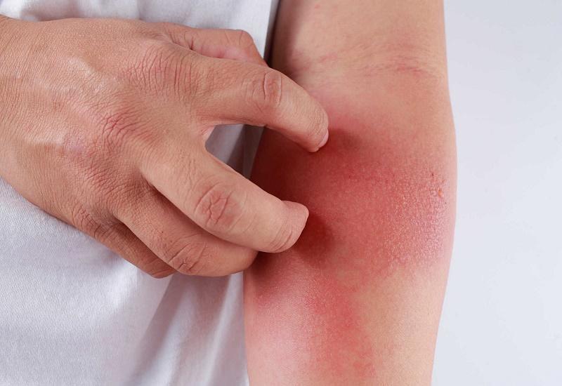 Bị nổi mẩn ngứa khắp người là dấu hiệu của bệnh gì?