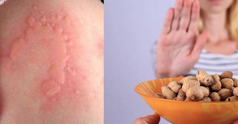 Dị ứng thực phẩm cũng khiến người bệnh bị nổi mẩn ngứa và dị ứng khắp người