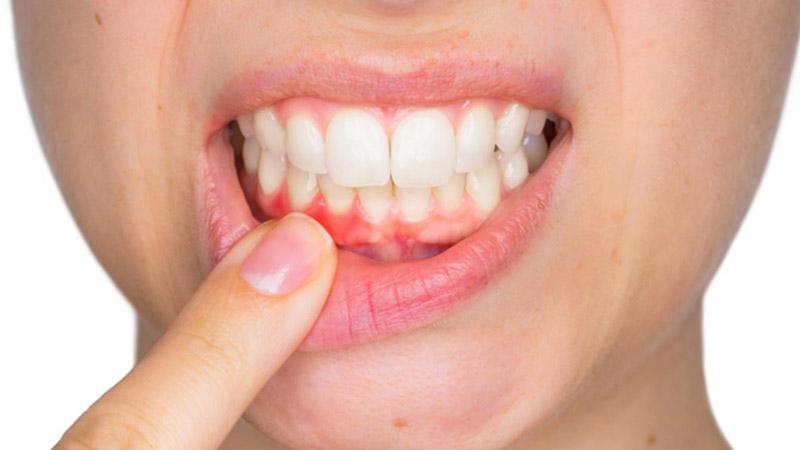 Lá ổi chữa bệnh về răng miệng