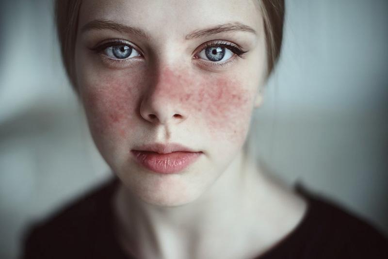 Lupus ban đỏ là bệnh lý có thể gây ra tình trạng mẩn ngứa nổi cục khắp người