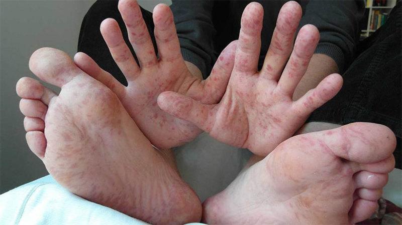 Mẩn ngứa ở chân, tay có thể là dấu hiệu một số bệnh da liễu