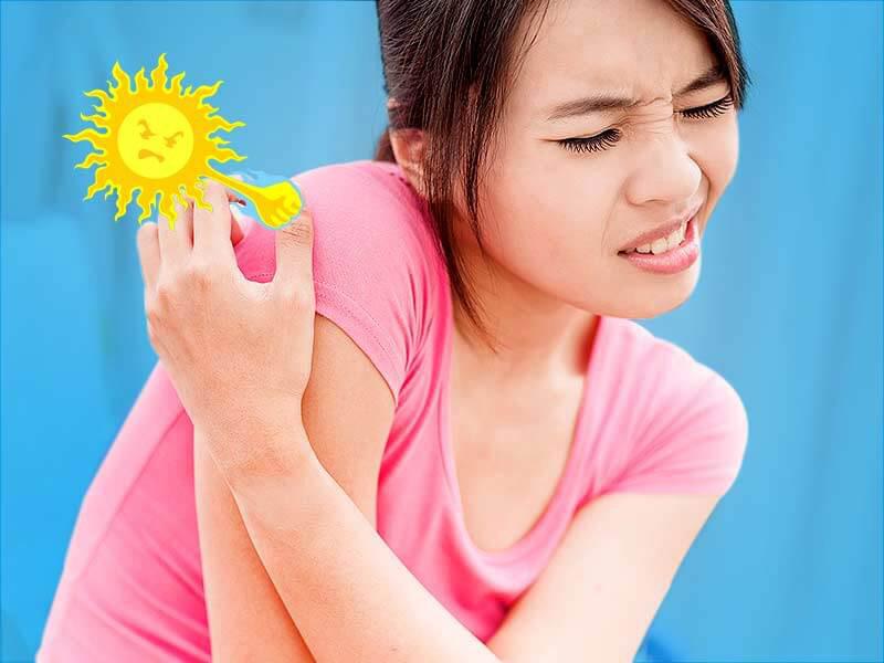 Mẩn ngứa vào mùa hè - Nguyên nhân do đâu?