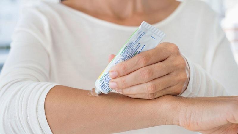 Người bệnh có thể bôi thuốc để kiểm soát hiệu quả các cơn ngứa da khó chịu