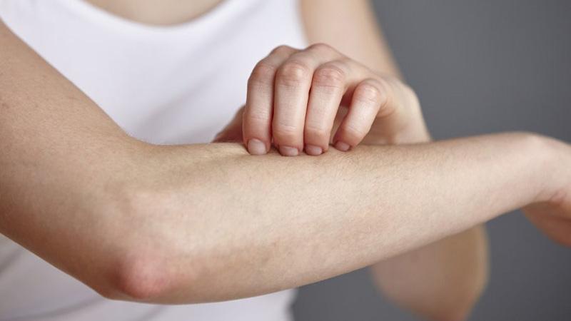 Những người dễ bị dị ứng sẽ có nguy cơ bị nổi mẩn ngứa cao hơn người bình thường