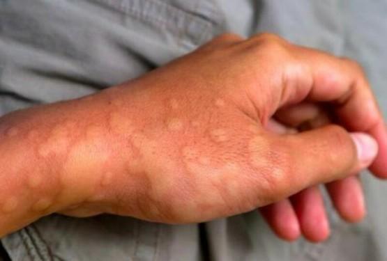 Nguyên nhân nổi mề đay do dị ứng thời tiết, di truyền hoặc virus