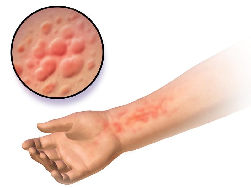 Nhiễm ký sinh trùng da cũng là nguyên nhân gây ngứa nổi mề đay khắp người