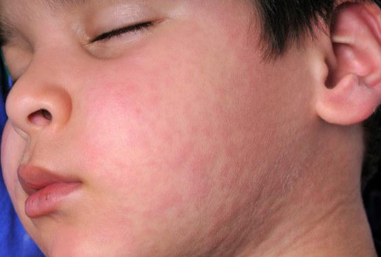 Nổi mề đay trên mặt khiến bệnh nhân nổi mẩn đỏ, ngứa ngáy