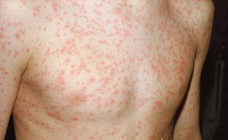 Sốt phát ban cũng dẫn đến tình trạng bị nổi mẩn ngứa khắp người