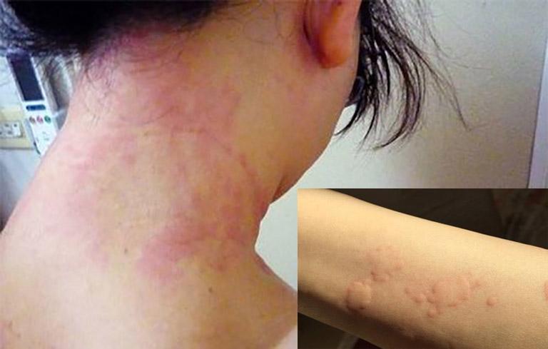 Tình trạng nổi mẩn ngứa xuất hiện dày đặc trên da