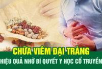 Chữa viêm đại tràng tại Trung tâm Thuốc dân tộc
