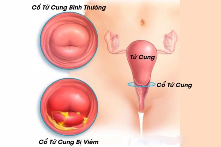 Bệnh viêm cổ tử cung