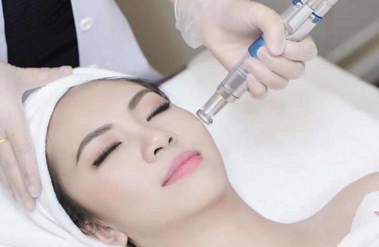 Laser trị tàn nhang là công nghệ phổ biến hiện nay